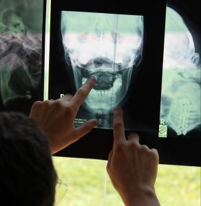 Open-mouth x-ray